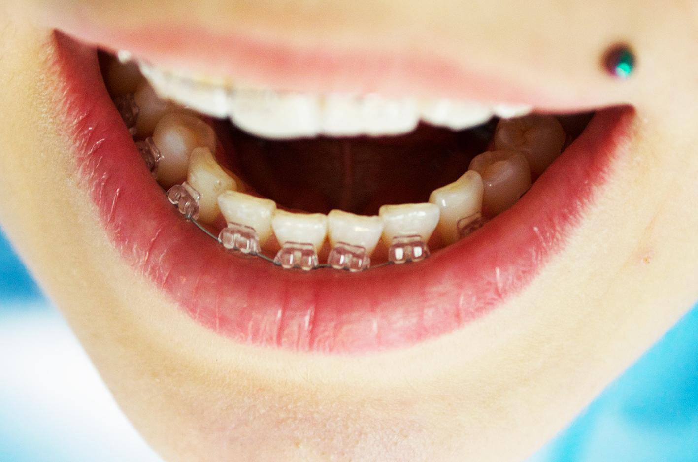 diş teli 2